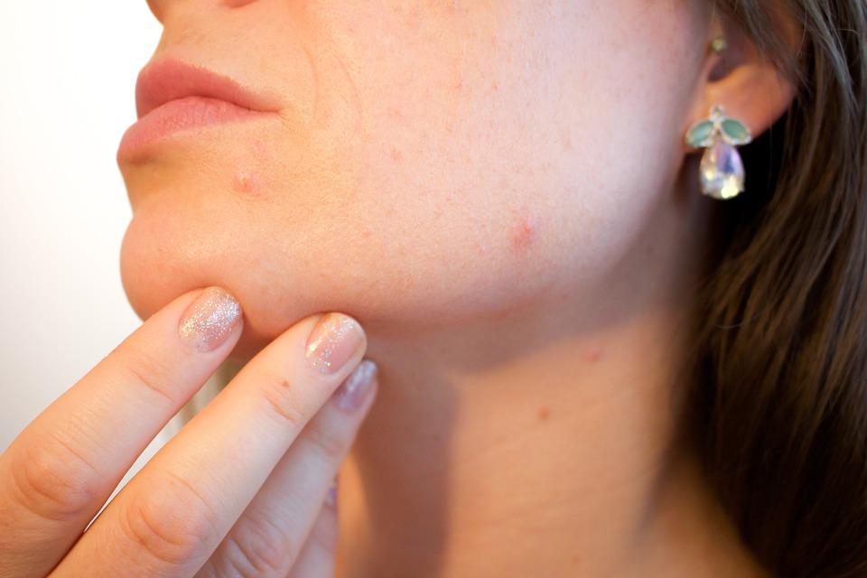 Was kann gegen Kosmetikakne gemacht werden?